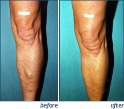 Varicose Vein Ablation